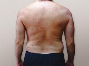 アトピー性皮膚炎w