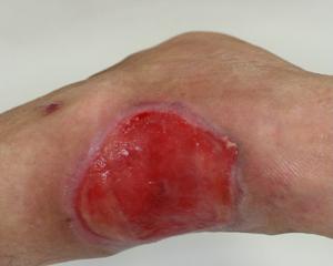 皮膚潰瘍o